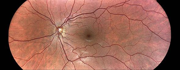 モザイク機能により、最大80°までの網膜のパノラマビューが可能